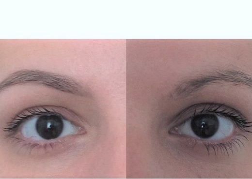 restructuration epilation sourcils